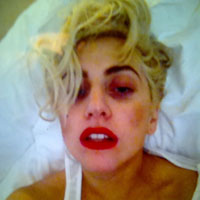 Lady Gaga Tweets black eye photo following concussion