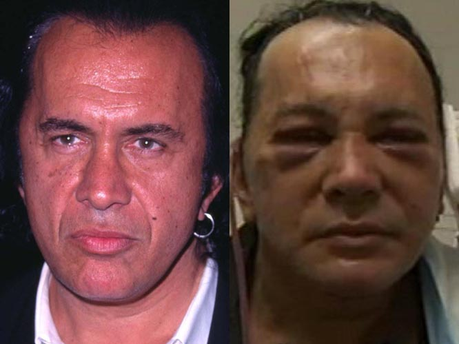 Man Spends 100 000 On Plastic Surgery To Look Nothing